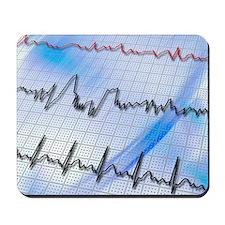Irregular heartbeat Mousepad