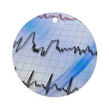 Irregular heartbeat Round Ornament