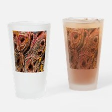 Intestine showing coeliac disease Drinking Glass