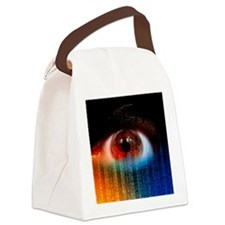 Iridology cholesterol ring Canvas Lunch Bag
