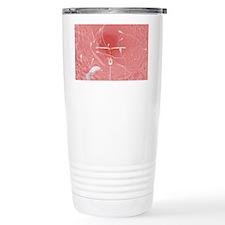 IUD contraceptive and sperm cel Travel Mug