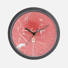 IUD contraceptive and sperm cells Wall Clock