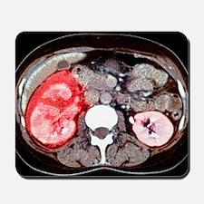 Kidney damage, CT scan Mousepad