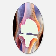 Knee joint prosthesis, X-ray Sticker (Oval)