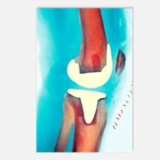 Knee joint prosthesis, X- Postcards (Package of 8)