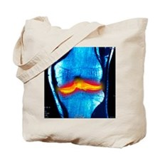 Joint disease, CT scan Tote Bag