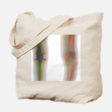 Knee replacement, X-ray Tote Bag