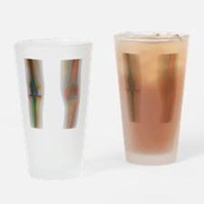 Knee replacement, X-ray Drinking Glass
