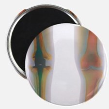 Knee replacement, X-ray Magnet