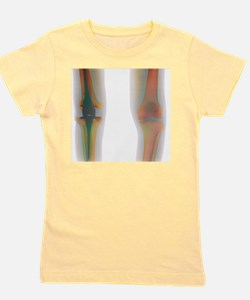 Knee replacement, X-ray Girl's Tee