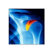 """Joint disease, CT scan Square Sticker 3"""" x 3"""""""