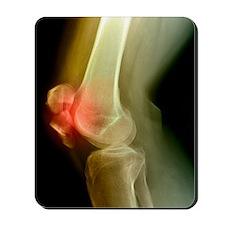Kneecap fracture, X-ray Mousepad