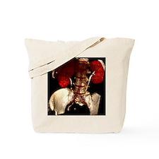 Kidney damage, CT scan Tote Bag