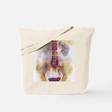 Kidney stone in ureter Tote Bag