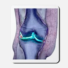 Knee meniscus tear Mousepad