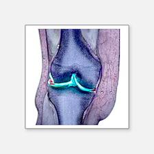 "Knee meniscus tear Square Sticker 3"" x 3"""