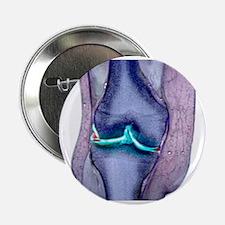 "Knee meniscus tear 2.25"" Button"