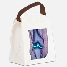 Knee meniscus tear Canvas Lunch Bag