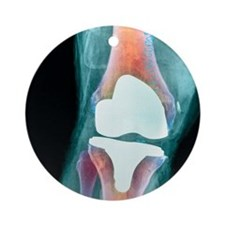 Knee joint prosthesis, X-ray Round Ornament