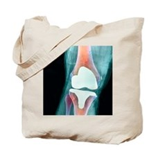 Knee joint prosthesis, X-ray Tote Bag