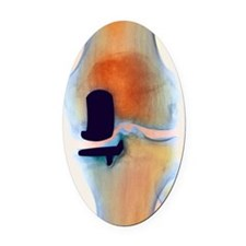 Knee joint prosthesis, X-ray Oval Car Magnet