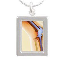 Knee replacement, X-ray Silver Portrait Necklace