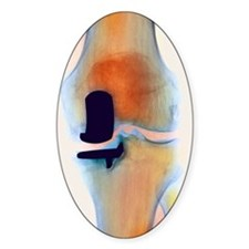 Knee joint prosthesis, X-ray Decal