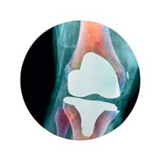 """Knee joint prosthesis, X-ray 3.5"""" Button"""