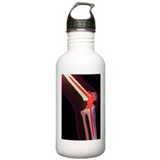 Knee replacement, X-ra Water Bottle