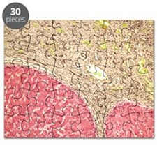 Liver tissue cirrhosis, light micrograph Puzzle