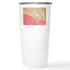 Liver tissue cirrhosis, light m Travel Mug