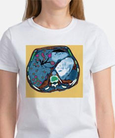 Liver cancer, CT scan Tee
