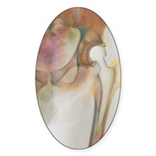 Loosened hip replacement, X-ray Decal