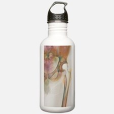 Loosened hip replaceme Water Bottle