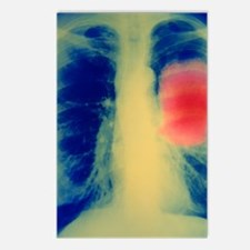 Lung cancer Postcards (Package of 8)