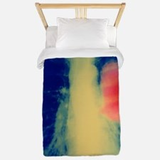 Lung cancer Twin Duvet
