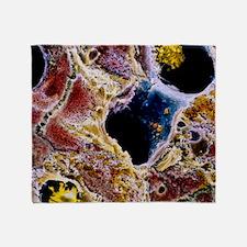 Liver cells with cirrhosis, SEM Throw Blanket