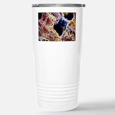 Liver cells with cirrhosis, SEM Travel Mug