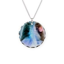 Lung cancer, X-ray Necklace