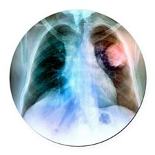 Lung cancer, X-ray Round Car Magnet