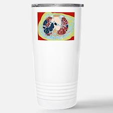 Lung disorder, CT scan Travel Mug