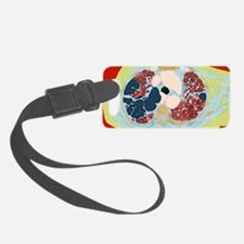 Lung disorder, CT scan Luggage Tag
