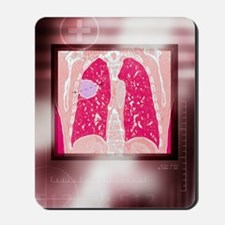 Lung cancer, CT scan Mousepad