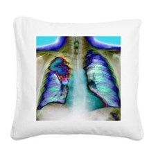 Lung cancer, X-ray Square Canvas Pillow