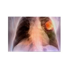 Lung cancer, X-ray Rectangle Magnet