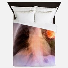 Lung cancer, X-ray Queen Duvet