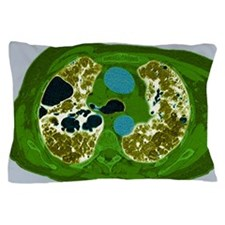 Lung fibrosis, CT scan Pillow Case