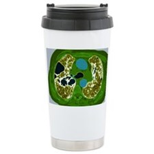 Lung fibrosis, CT scan Travel Coffee Mug
