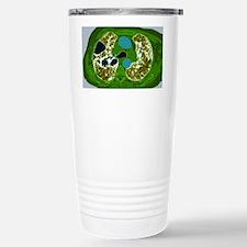 Lung fibrosis, CT scan Travel Mug
