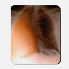 Lung cancer, X-ray Mousepad